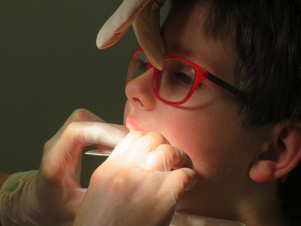 4 idei importante despre anomaliile dentare la copii