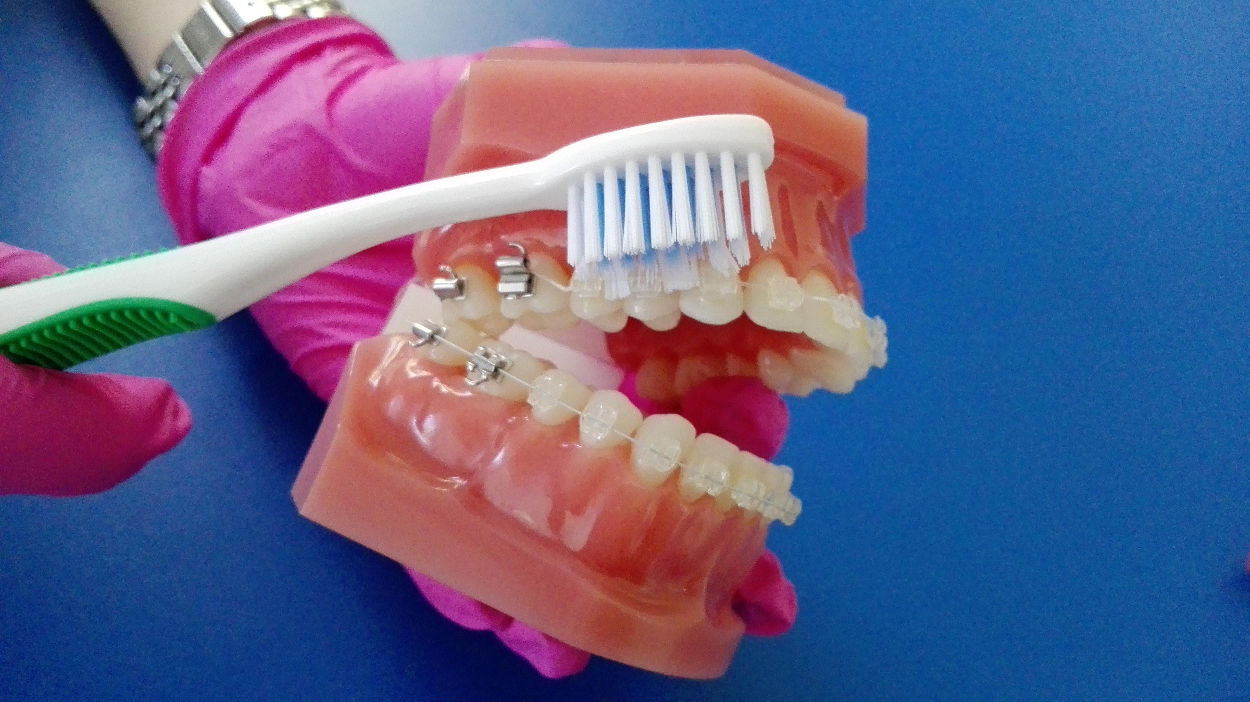 igiena aparatelor dentare