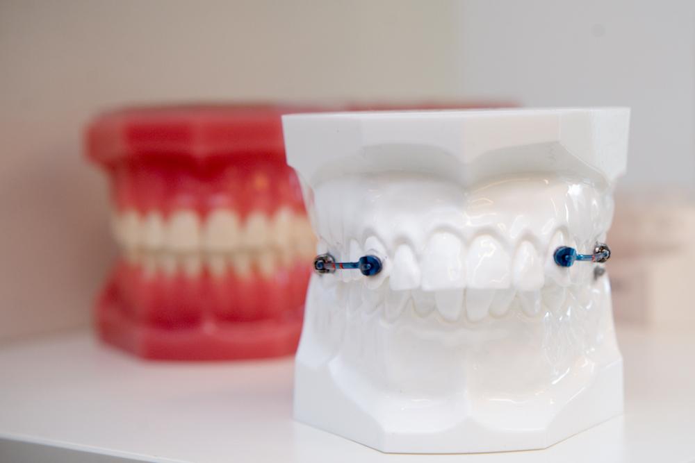 ortodonția fără extracție